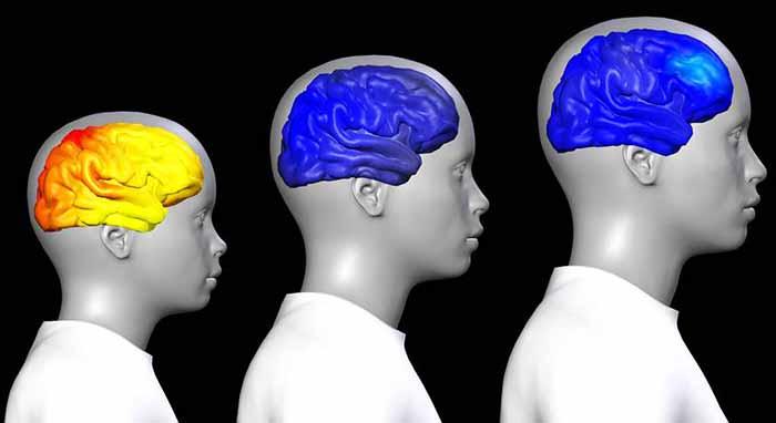 كيف يتغير الدماغ عند المراهقة و البلوغ ؟