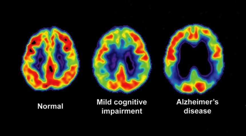 The brain of a person with Alzheimer's compared to the brain of a healthy person