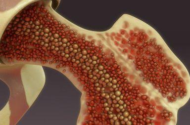 متلازمات خلل التنسج النقوي: الأسباب والأعراض والتشخيص والعلاج مجموعة من الأمراض الدموية التي تسبب انخفاضًا في انتاج خلايا الدم