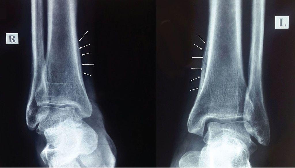 الاعتلال المفصلي العظمي الضخامي: الأسباب والأعراض والتشخيص والعلاج د فعل سمحاقي للعظام الطويلة دون وجود آفة عظمية تكاثر الأنسجة الرخوة غير الطبيعي