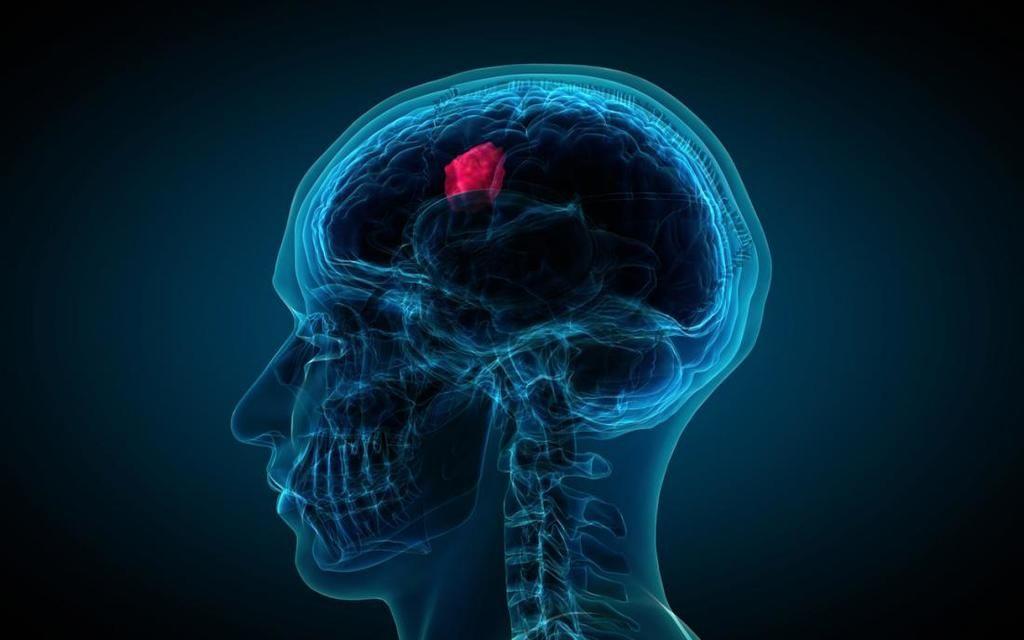 الأورام الدماغية: الأسباب والأعراض والتشخيص والعلاج علاج أورام الدماغ أسسباب ظهور الورم داخل القحف الطفرات الجينية التي تسبب السرطان
