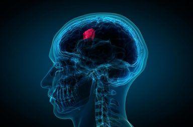 الورم الأرومي الدبقي الأسباب والأعراض والتشخيص والعلاج علاج الورم الأرومي الدبقي أورام الدماغ الخبيثة سرطان الدماغ صداع إقياء