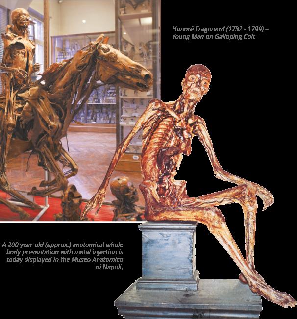 شرح الصورة: التماثيل التشريحية للطبيب و الفنان هونوري فراغونارد