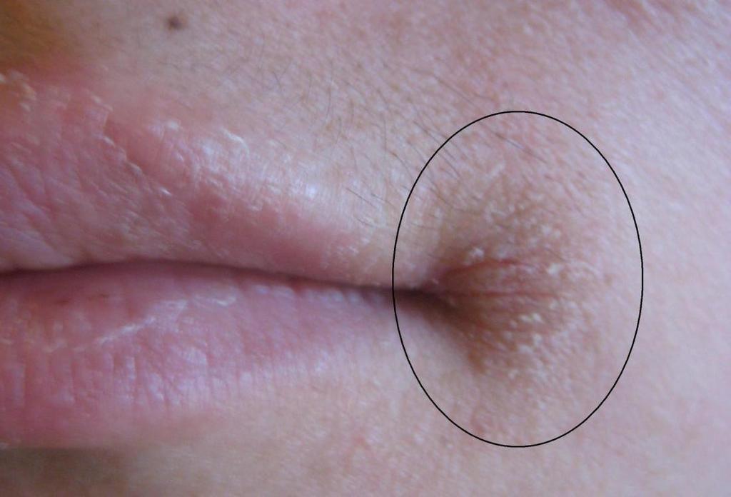 أسباب التهاب الشفة الزاوي ما الذي يسبب التهاب الفم الشفوي علاج التهابات الفم بقع حمراء على جانب الشفاه علاج تقرحات الشفاه