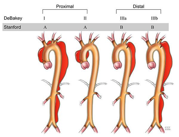 أسباب تسلخ الأبهر أعراض تسلخ الأبهر العلاج التشخيص أمراض القلب التصلب الشرياني تدفق الدم عبر الشريان الدم المشبع بالأكسجين