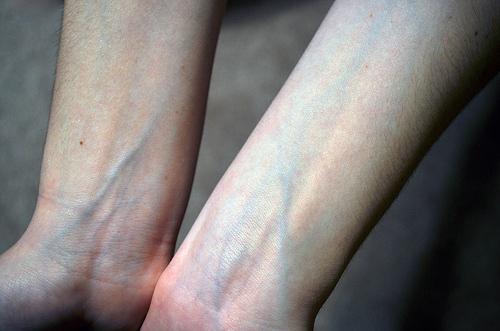 مغالطة: الدم الغير مؤكسج لونه أزرق