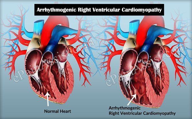 خلل تنسج البطين الأيمن المحدث لاضطراب النظم خلل التنسج الاعتلال العضلي القلبي القصور القلبي توقف القلب الموت المفاجئ الأعراض