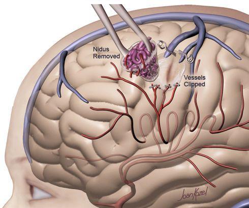 أسباب التشوه الشرياني الوريدي علاج التشوه الشرياني الوريدي الأسباب والأعراض والتشخيص والعلاج الدماغ الأم الجافية مرور الدم الأوردة الشرايين