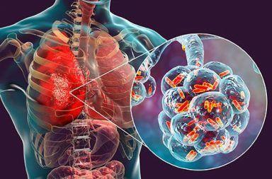الالتهاب الرئوي الجرثومي: الأسباب والأعراض والتشخيص والعلاج التهاب في الرئتين نتيجة عدوى جرثومية الالتهاب الرئوي بالمكورات الرئوية