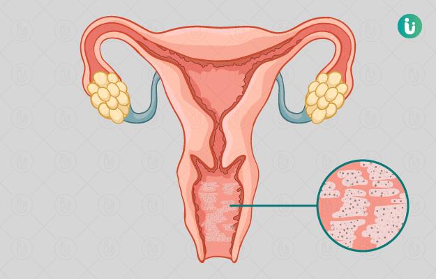 التهاب المهبل الجرثومي: الأسباب والأعراض والتشخيص والعلاج