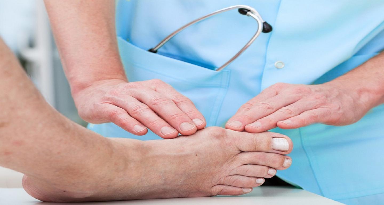 النقرس (التهاب المفاصل النقرسي): أسبابه وأعراضه وعلاجه