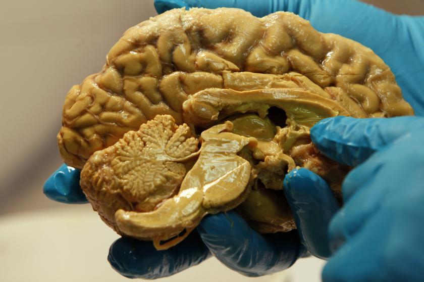 الحصين الدماغ التعلم