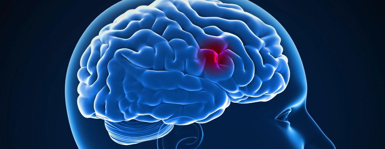 اكتشاف نوع جديد من الجزيئات يمكن أن يحمي من السكتة الدماغية