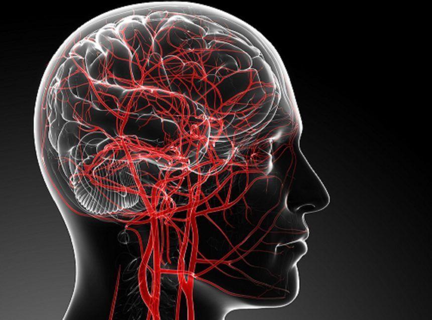 نقائل الدماغ : الأسباب و الأعراض و التشخيص و العلاج