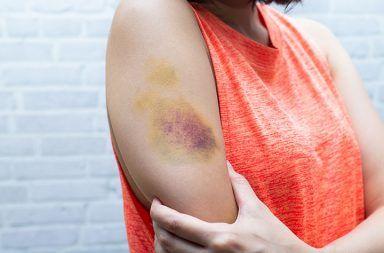 لماذا تتغير ألوان الكدمات باستمرار تلف الأوعية الدموية دون جرح الجلد تضرر أنسجة الجلد من دون حدوث نزف دموي امتصاص الدم المتسرب