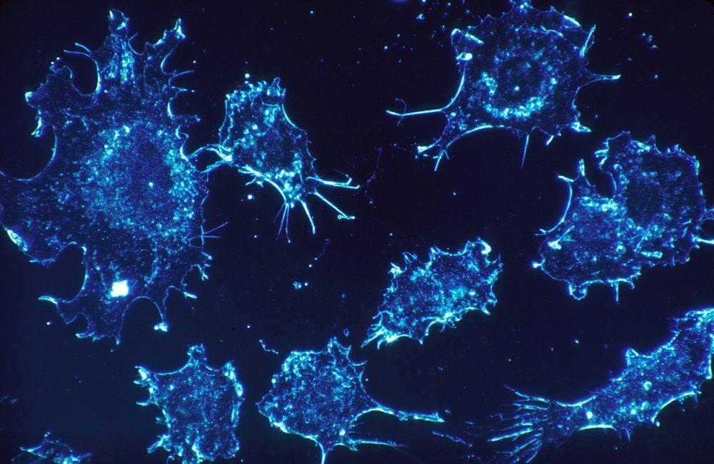 آلية جديدة يقاوم من خلالها السرطان العلاج المناعي