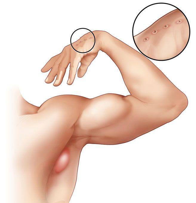 يظهر في الصورة تورم العقدة الليمفاوية في إبط الشخص المصاب بداء خدش القطط، والجرح الناتج عن عضة القطة أو الخدش في يده.