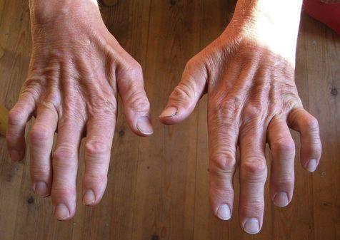مرض شاركو-ماري-توث: الأسباب والأعراض والتشخيص والعلاج