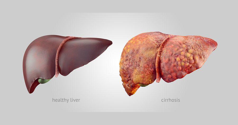 الفشل الكبدي الكحول تلف الكبد