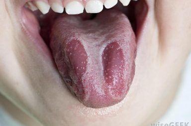 الطلوان الفموي المشعر: الأسباب والأعراض والتشخيص والعلاج فيروس إبشتاين بار EBV فيروس نقص المناعة البشرية HIV ضعف جهاز المناعة