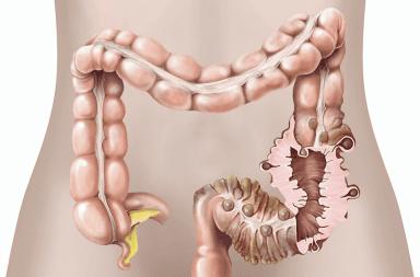 داء الرتج الأسباب والأعراض والتشخيص والعلاج بروزات صغيرة أكياس في جدار الأمعاء الغليظة القولون المستقيم الشرج التهاب الرتج