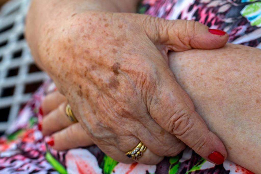أسباب البقع الداكنة على الجلد علاج البقع الداكنة على الجلد أسباب فرط التصبغ علاج فرط التصبغ العلاج الميلانين البني الداكن التعرض لأشعة الشمس