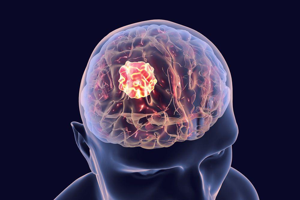 الورم النجمي: الأسباب والأعراض والتشخيص والعلاج