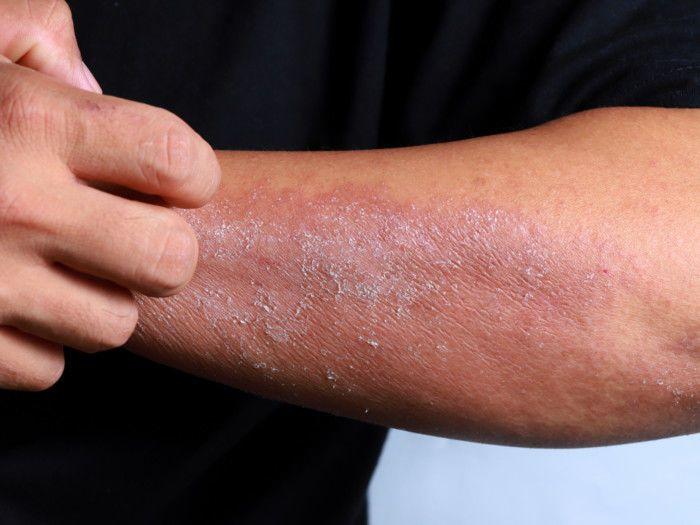 التهاب الجلد التماسي: الأسباب والأعراض والتشخيص والعلاج