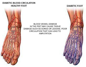 أعراض مشاكل القدم عند مرضى السكري علاج مشاكل القدم عند مرضى السكري الأسباب والأعراض والتشخيص والعلاج القدم السكرية مسامير اللحم