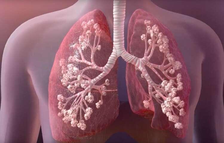 التليف الكيسي cystic fibrosis الأسباب والأعراض والتشخيص والعلاج مرض وراثي يصيب الرئة والجهاز الهضمي مخاط ثقيل في الرئة والبنكرياس