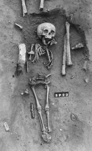أقدم حالة مكتشفة لمتلازمة داون تعود للعصور الوسطى في فرنسا