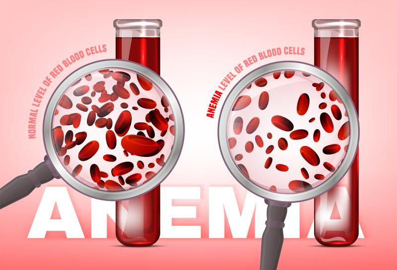 ما هي أعراض عوز الحديد عند النساء؟ - انخفاض عدد كريات الدم الحمراء عن الطبيعي - حصول الأنسجة والعضلات على كفايتها من الأكسجين