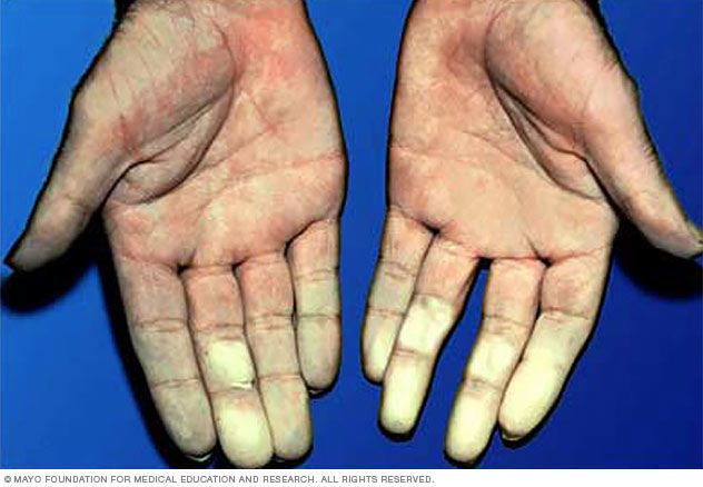 داء رينو – Raynaud's Disease