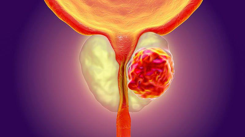 اختبار جديد يكشف الأنواع الخطيرة من سرطان البروستات أشيع سرطان يصيب الذكور حالات الأورام الخبيثة عند الذكور أنواع سرطان البروستات