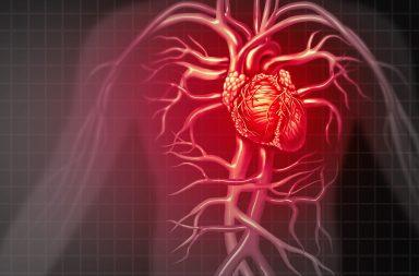 متلازمة وولف باركنسون وايت: الأسباب والأعراض والتشخيص والعلاج - عيب خلقي في القلب يسبب شحنات كهربائية زائدة وغير منظمة - تسرع نبضات القلب