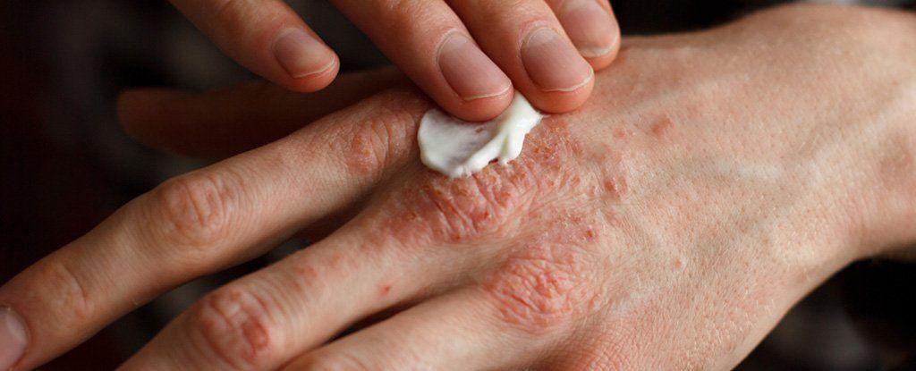ماذا يحدث في الجلد عند إصابتك بالأكزيما؟ العلماء وجدوا الحلّ أخيرًا