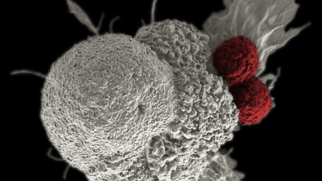 المعالجة المناعية : تدريب الجسم على محاربة السرطان