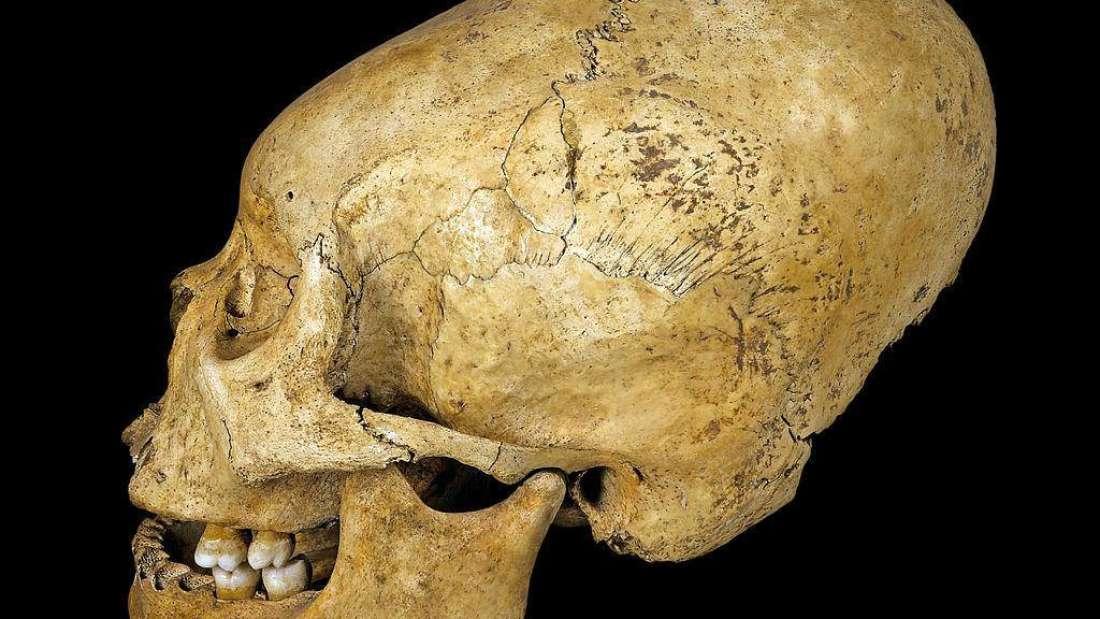 لماذا تمتد جماجم شعوب البيرو القديمة بهذا الشكل الغريب؟