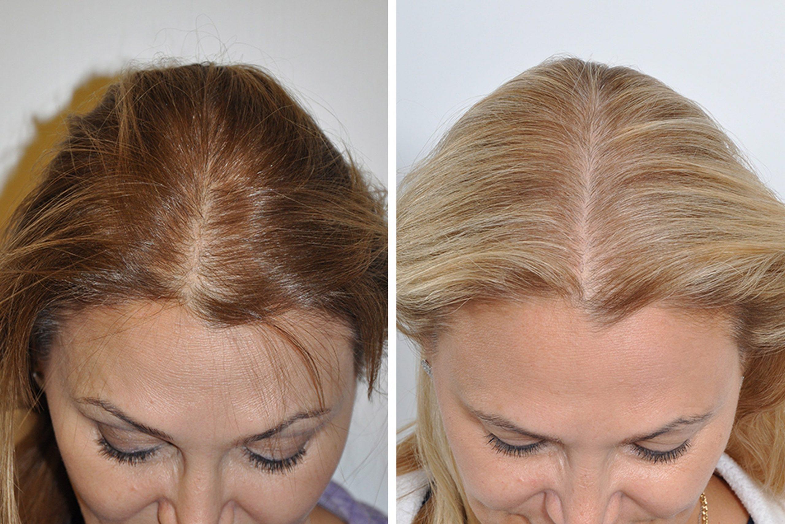 عملية زرع الشعر: ما هو المتوقع؟ - ما هي النتيجة المتوقعة لعلميات زرع الشعر؟ - لماذا يصاب بعض الناس بالصلع قبل الأوان؟ - نمو الشعر من جديد