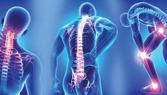 ما هو الفيبروميالغيا الذي أصاب ليدي جاجا ومورغان فريمان ألم واسع الانتشار في أغلب أرجاء الجسم آلام العضلات والعظام التشوش الليفي