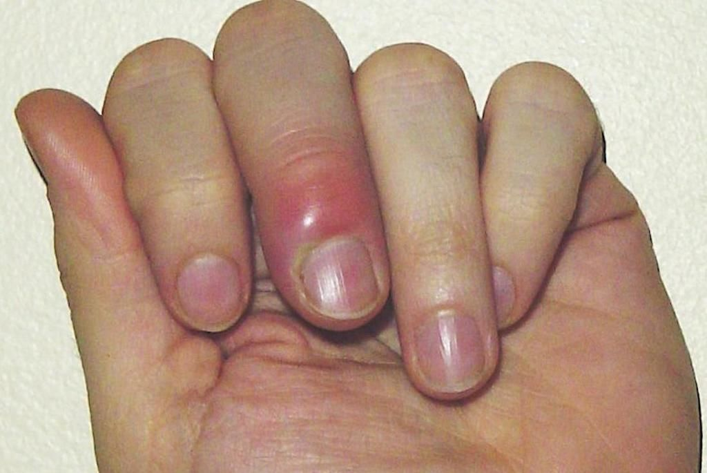 الداحس - التهاب حول الظفر: الأسباب والأعراض والتشخيص والعلاج التهاب جرثومي أو فطري جلدي حول الظفر التهاب حول الأظافر الظفر