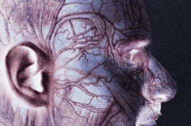 التهاب الشريان ذو الخلايا العملاقة أو التهاب الشريان الصدغي GCA استخدام الستيرويدات القشرية ألم العضلات الروماتزمي الالتهاب الوعائي أو الالتهاب الشرياني