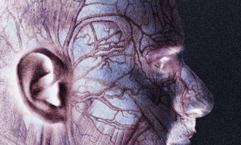 التهاب الشريان ذو الخلايا العملاقة أو التهاب الشريان الصدغي GCA