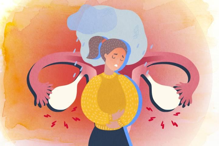 متلازمة ما قبل الطمث: الأسباب والأعراض والتشخيص والعلاج مجموعة الأعراض الجسدية والنفسية التي تحصل لدى الإناث قبل الحيض PMS