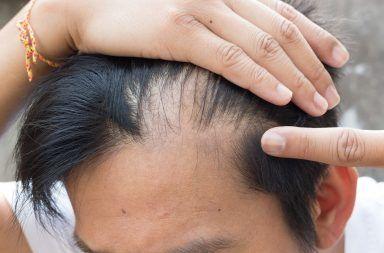 أسباب الثعلبة أعراض الثعلبة أسباب فقدان الشعر الموضعي علاج فقدان الشعر الموضعي التشخيص أسباب وراثية التعرض للشمس بصيلات الشعر