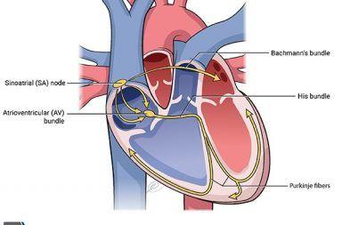 متلازمة العقدة الجيبية المريضة: الأسباب والأعراض والتشخيص والعلاج مصطلح عام لمجموعة من الاضطرابات الناتجة عن سوء عمل العقدة الجيبية sinus node
