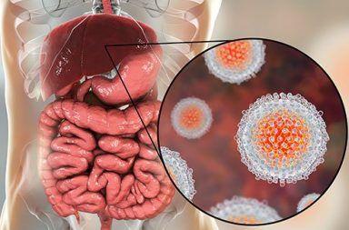 التهاب الكبد D الأسباب والأعراض والتشخيص والعلاج فيروس التهاب الكبد سرطان الكبد بول غامق اللون اصفرار في الجلد والعينين اليرقان