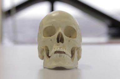 ما سبب نمو البنية العظمية الغريبة من الجمجمة عند اليافعين كيف يتكيف الجهاز العضلي الهيكلي مع نمط حياة الإنسان نتوءات عظمية على قاعدة الجمجمة