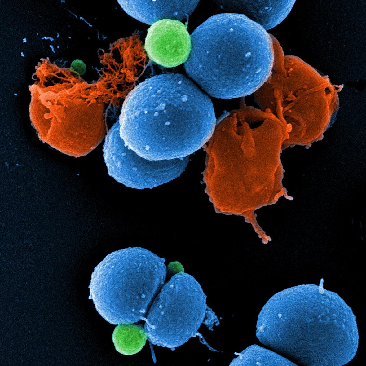 كيف يؤمن تطوير الجراثيم لترسانات المضادات الحيوية خططًا دوائية جديدة - نوعين مختلفين من الجراثيم قد طورا ترسانات متميزة وقوية من مضادات حيوية
