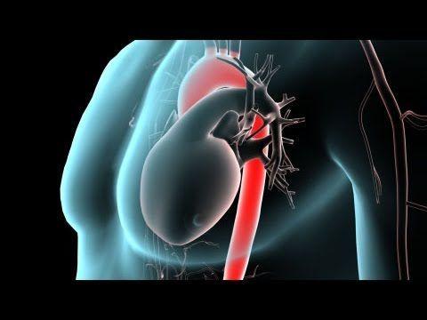أسباب قلس الصمام الأبهري أعراض قلس الصمام الأبهري تسلخ الأبهر أمراض القلب الخفقان القلبي الشريان الأبهر البطين الأيسر الألم الصدري